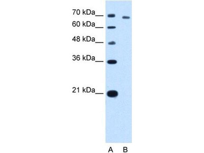 anti-threonyl-tRNA synthetase (Aats-thr) antibody