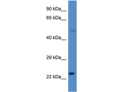 anti-CYP1B1 antibody