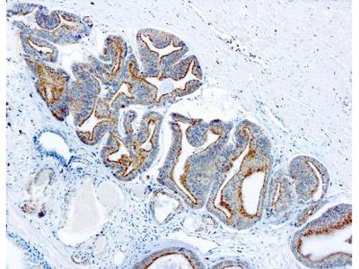 alpha-Methylacyl-CoA Racemase /AMACR Antibody