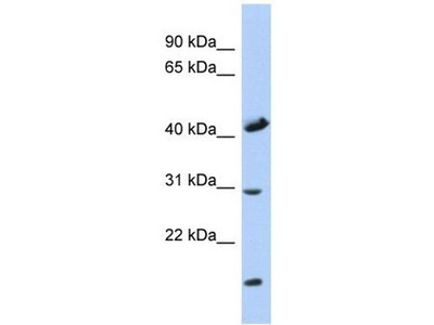 anti-Cytochrome C Oxidase Assembly Homolog 18 (Yeast) (COX18) antibody