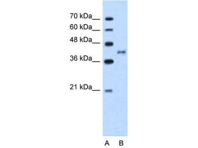 anti-BDKRB2 (Bradykinin Receptor B2) antibody