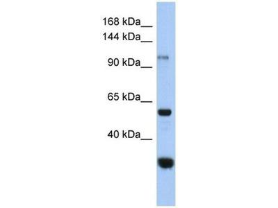 anti-GANC antibody