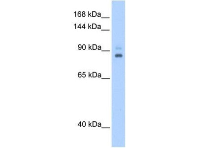 anti-TPX2 antibody