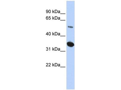 anti-Family with Sequence Similarity 175, Member B (FAM175B) (Middle Region) antibody