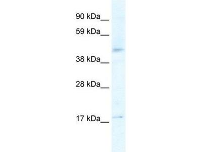 anti-Serotonin Receptor 1F (HTR1F) (N-Term) antibody