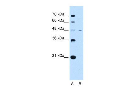 anti-SLC16A1 antibody