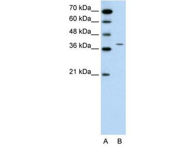 anti-Receptor-Associated Protein of The Synapse (RAPSN) (N-Term) antibody