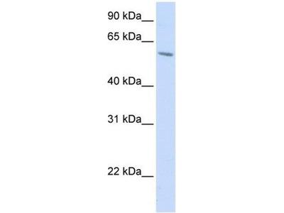 anti-porcupine (PORCN) antibody