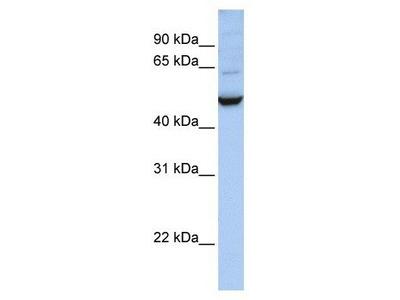 anti-IDH1 antibody