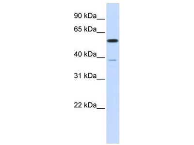 anti-Protein Phosphatase 2, Regulatory Subunit B', alpha (PPP2R5A) (N-Term) antibody