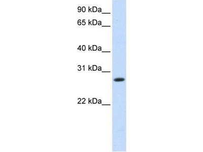 anti-HSD11B1 antibody