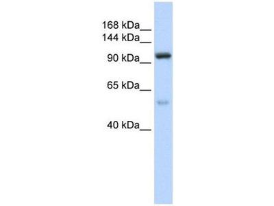 anti-Nucleolar Protein 6 (NOL6) antibody