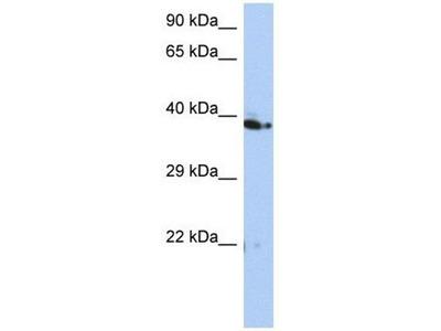 anti-CACUL1 antibody