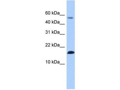anti-LYZL6 antibody