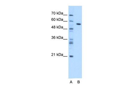 anti-carboxylesterase 1C (Ces1c) antibody
