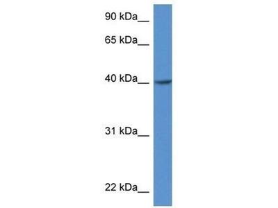 anti-ZDHHC11 antibody