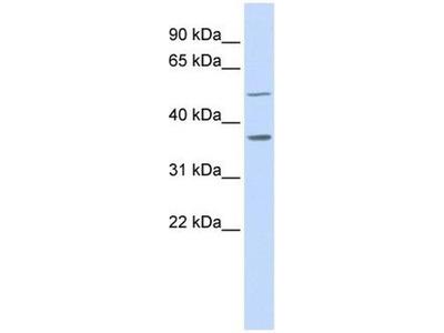 anti-PTGR2 antibody