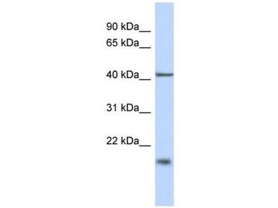 anti-TBC1D21 antibody