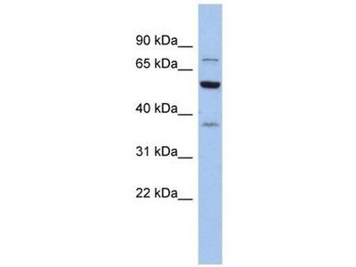 anti-GARS (Glycyl-tRNA synthetase) antibody