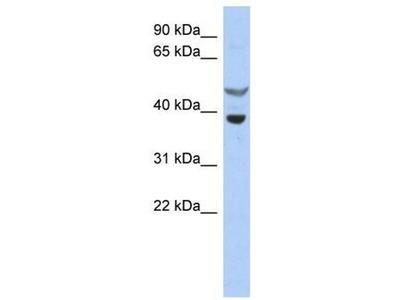 anti-SOCS7 antibody