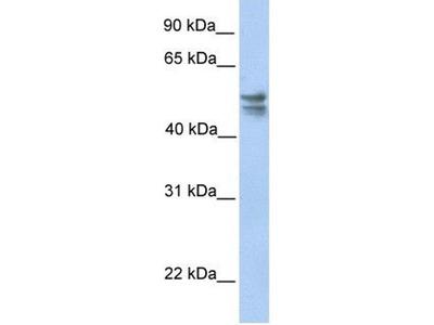 anti-tRNA 5-Methylaminomethyl-2-Thiouridylate Methyltransferase (TRMU) (C-Term) antibody