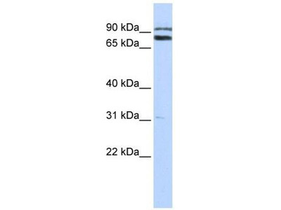 anti-TRIM67 antibody