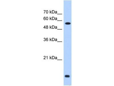 anti-P4HB (PDI) antibody