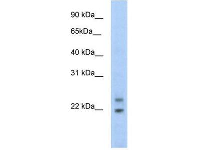 anti-Cphx1 antibody
