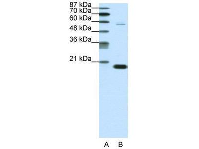anti-CBX3 Antibody
