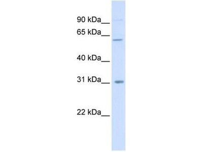 anti-CHST2 (CHST4) antibody
