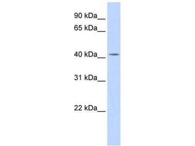 anti-Dehydrodolichyl Diphosphate Synthase (DHDDS) (N-Term) antibody