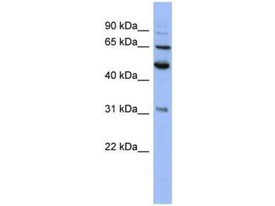 anti-Proteasome (Prosome, Macropain) 26S Subunit, Non-ATPase, 3 (PSMD3) antibody