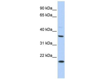 anti-Potassium Large Conductance Calcium-Activated Channel, Subfamily M beta Member 3 (KCNMB3) antibody