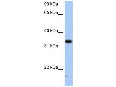 anti-SULT6B1 antibody