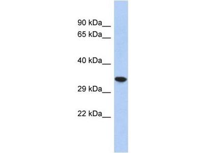 anti-CREG2 antibody