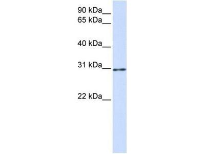 anti-AKT1 Substrate 1 (Proline-Rich) (AKT1S1) antibody