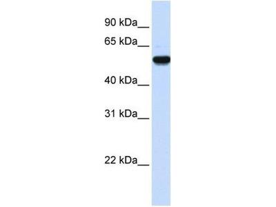 anti-EEF1A2 antibody