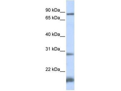 anti-SMYD4 antibody