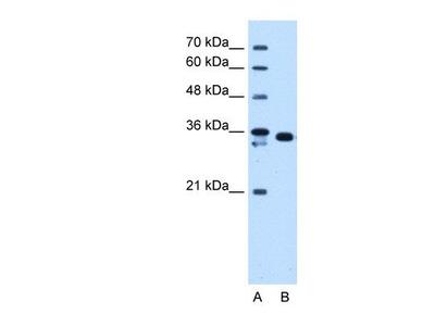 anti-AKR1B1 (Akr1b3) antibody