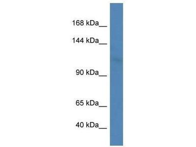 anti-LIG3 antibody