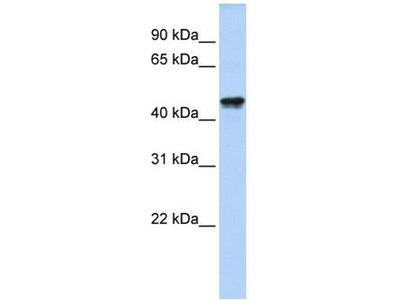 anti-QTRTD1 antibody