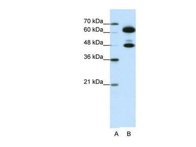 anti-SNRNP70 antibody