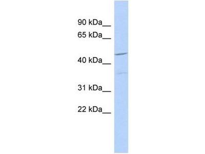 anti-FAM81A antibody