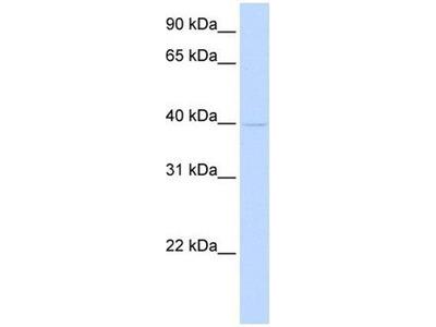 anti-TMOD2 antibody