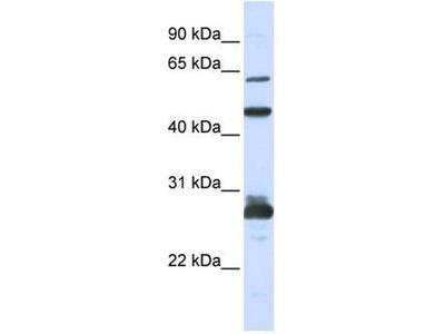 anti-PES1 antibody