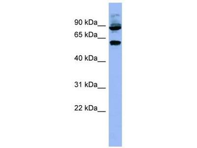 anti-Ribosomal Protein S6 Kinase, 70kDa, Polypeptide 1 (RPS6KB1) (N-Term) antibody