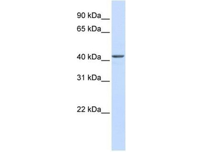 anti-RNA-Binding Protein NOB1 (NOB1) antibody