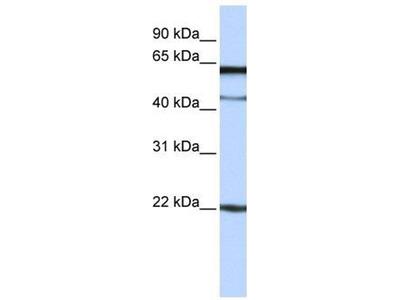 anti-C6orf25 antibody