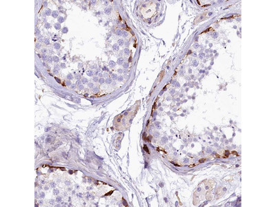 Anti-CMTR2 Antibody