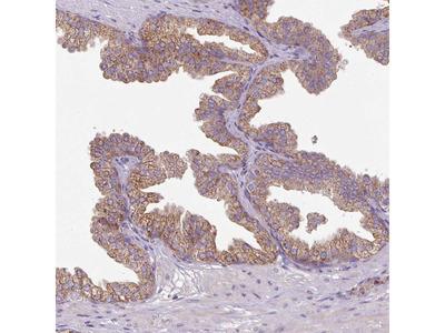 Anti-SQRDL Antibody